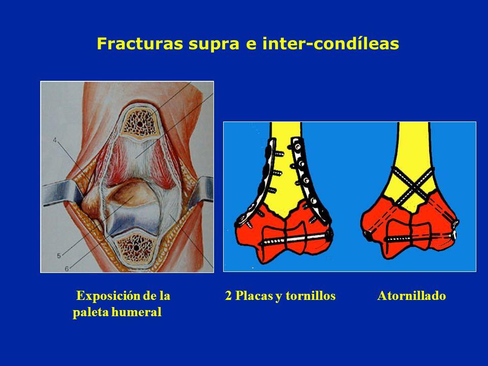 Fracturas supra e inter-condíleas