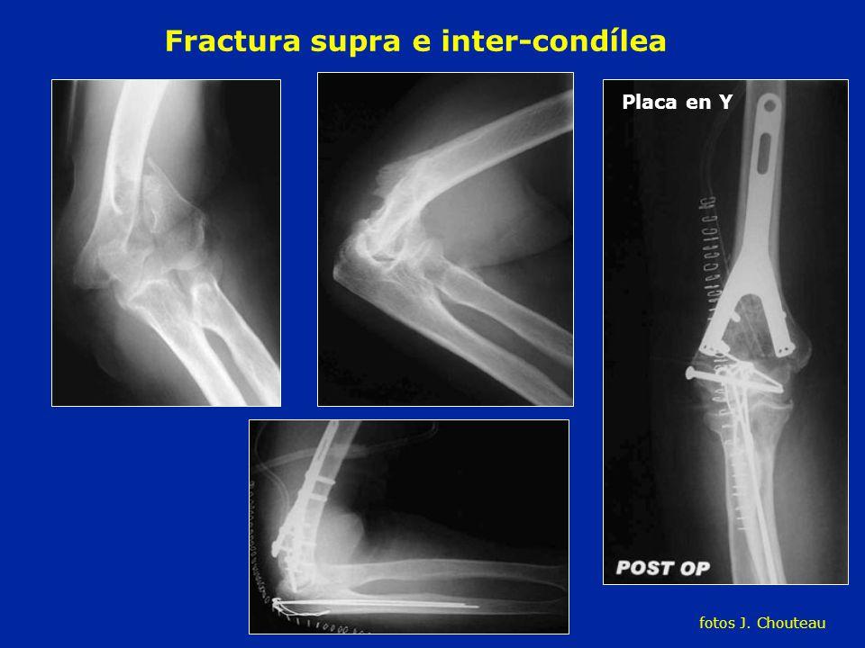 Fractura supra e inter-condílea