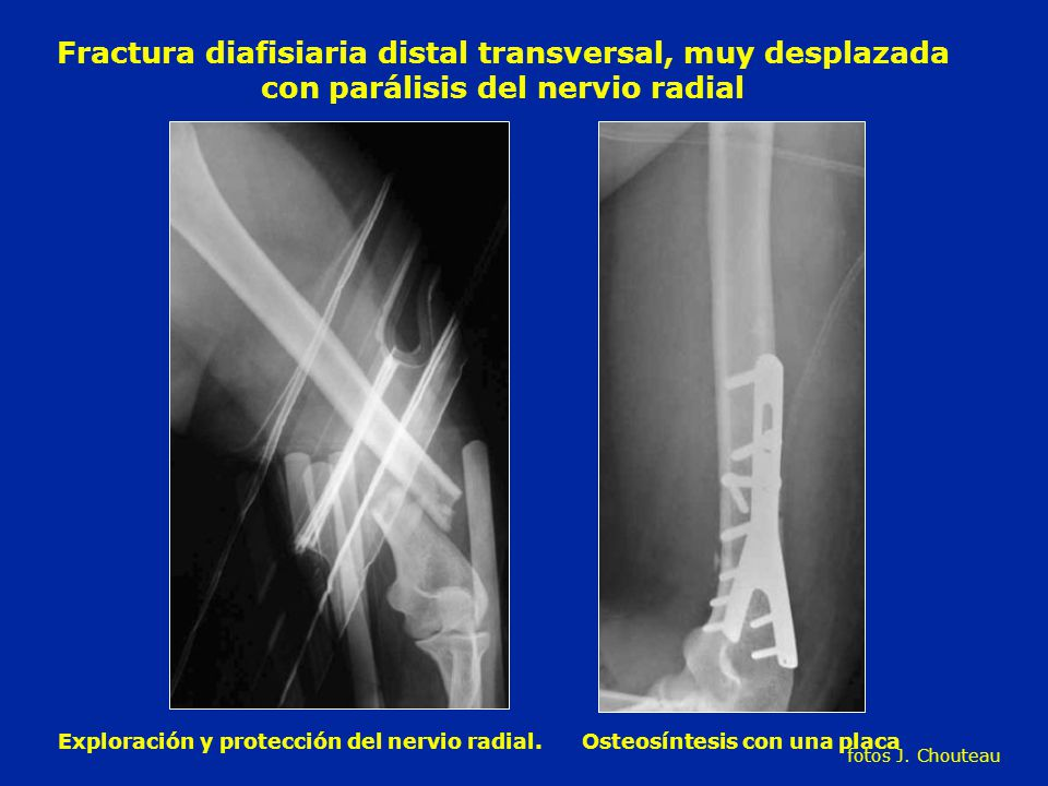 Excepcional Fractura Transversal Viñeta - Imágenes de Anatomía ...