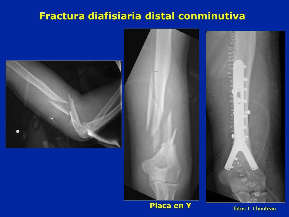 Fractura diafisiaria distal conminutiva
