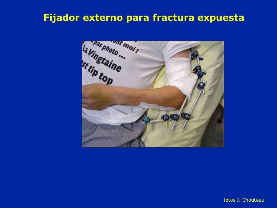 Fijador externo para fractura expuesta