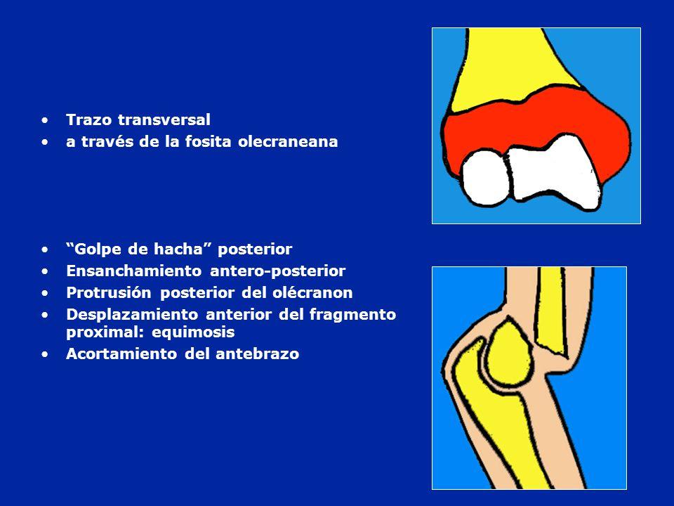 Trazo transversal a través de la fosita olecraneana. Golpe de hacha posterior. Ensanchamiento antero-posterior.
