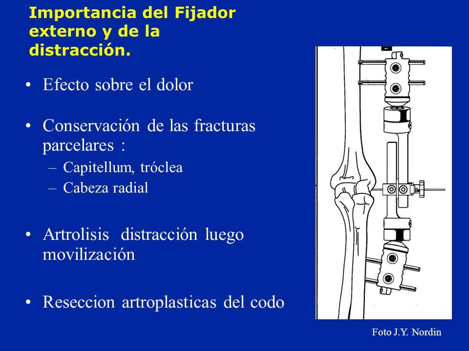 Conservación de las fracturas parcelares :