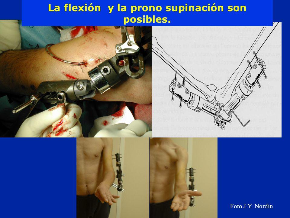 La flexión y la prono supinación son posibles.