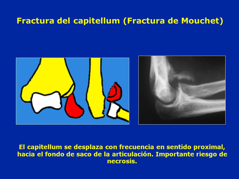 Fractura del capitellum (Fractura de Mouchet)