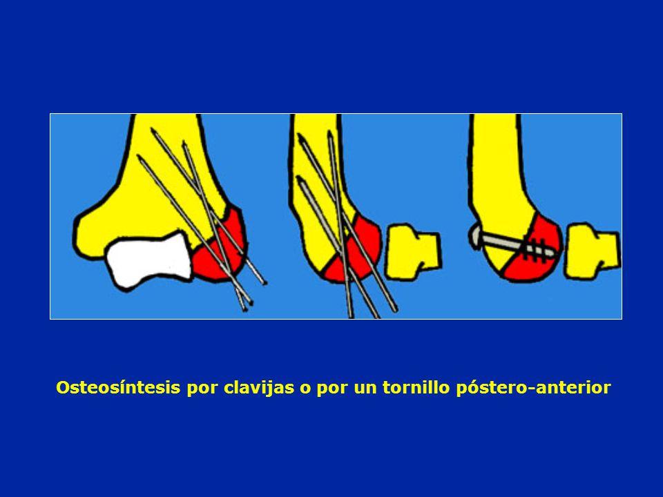 Osteosíntesis por clavijas o por un tornillo póstero-anterior