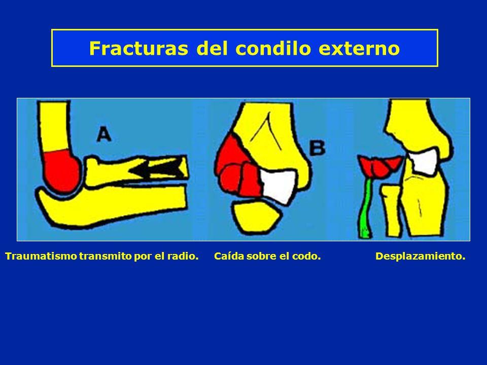 Fracturas del condilo externo