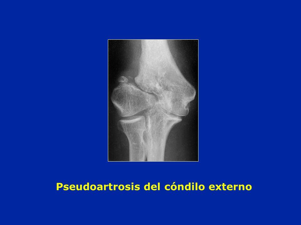 Pseudoartrosis del cóndilo externo