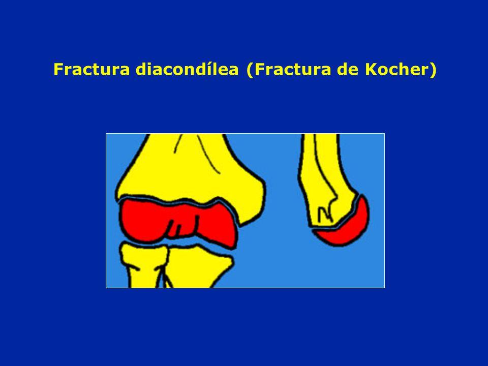 Fracture diacondylienne