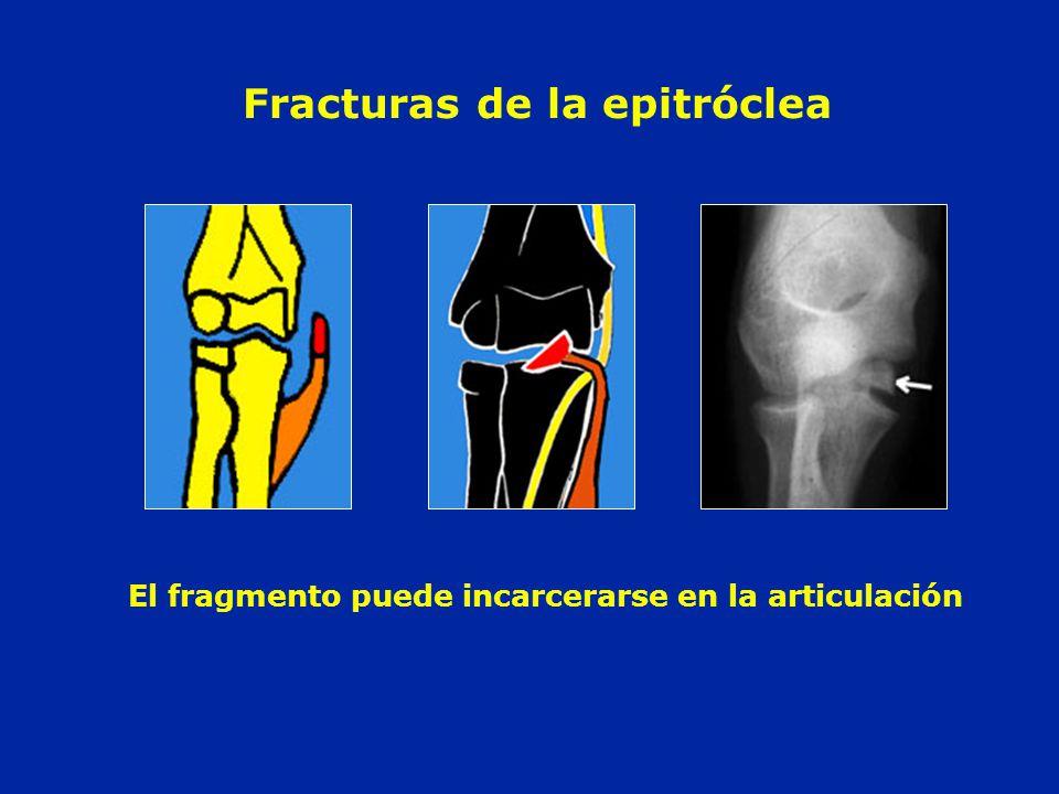 Fracturas de la epitróclea