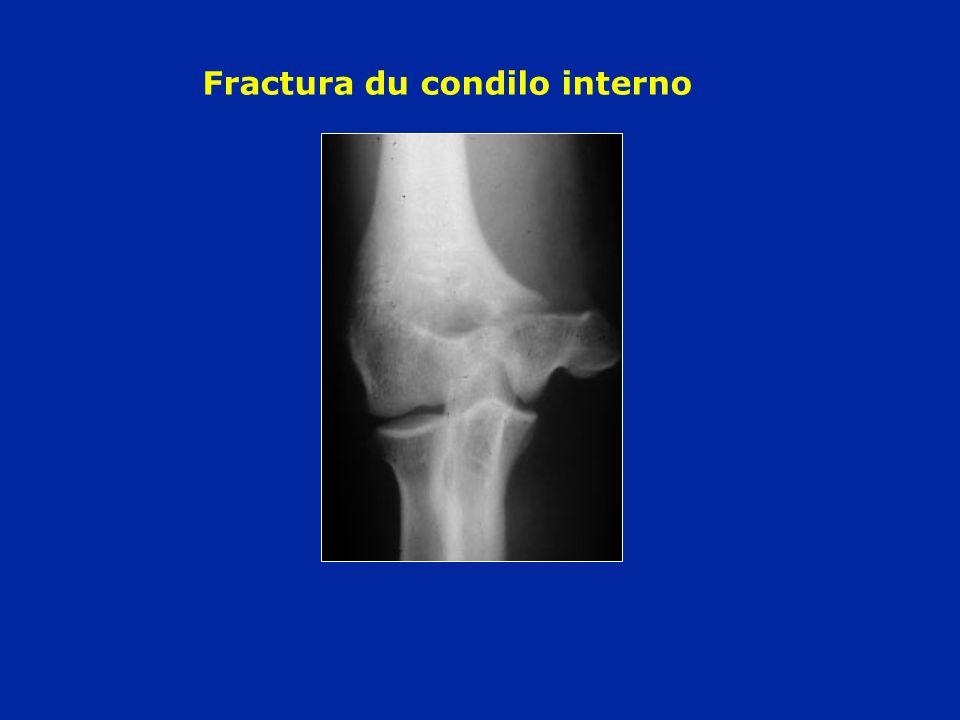 Fractura du condilo interno