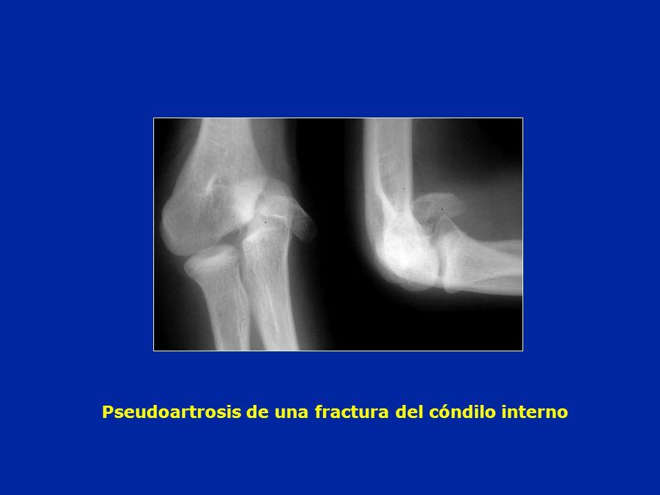 Pseudoartrosis de una fractura del cóndilo interno