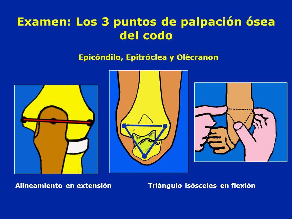 Examen: Los 3 puntos de palpación ósea del codo