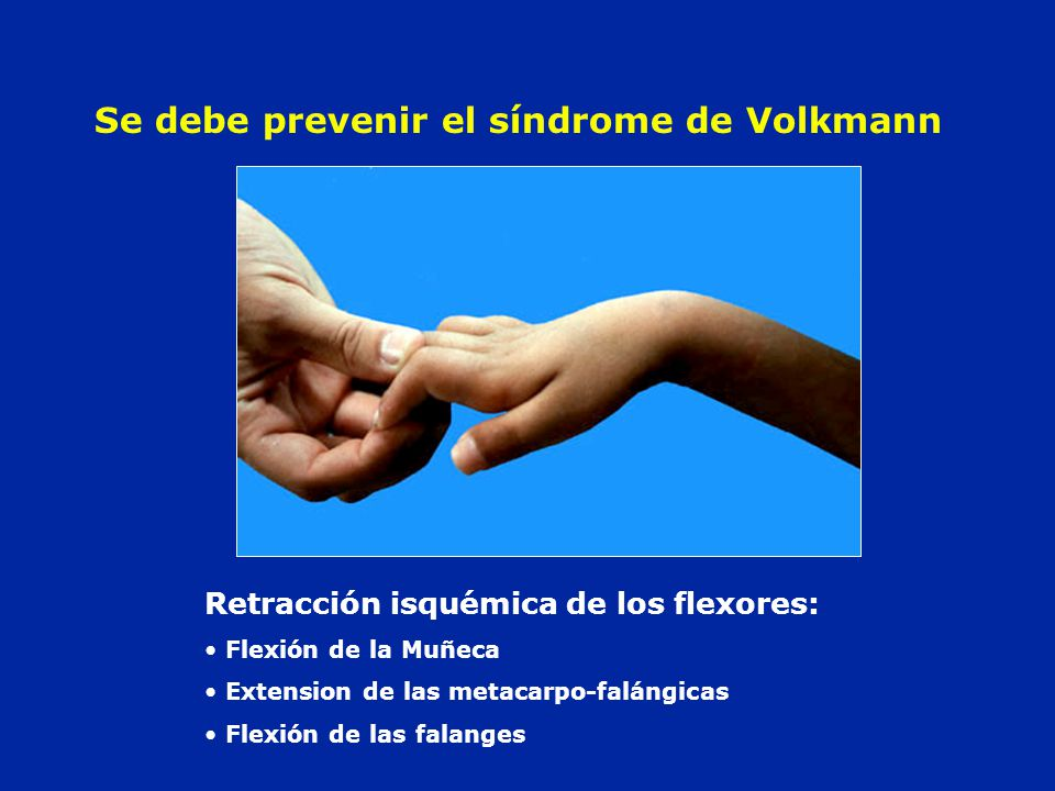 Se debe prevenir el síndrome de Volkmann