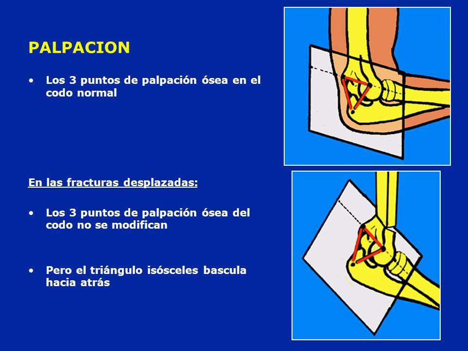 PALPACION Los 3 puntos de palpación ósea en el codo normal