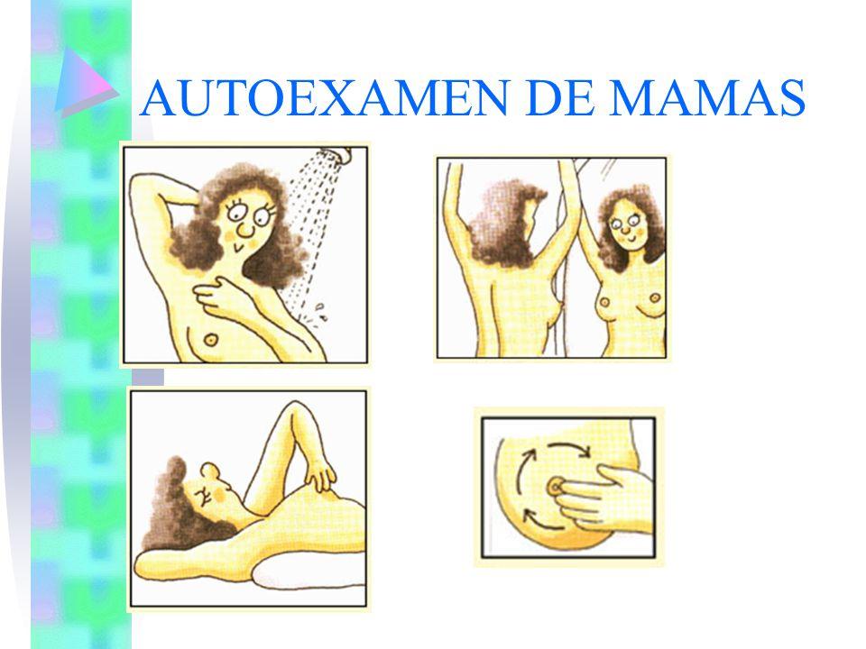 AUTOEXAMEN DE MAMAS