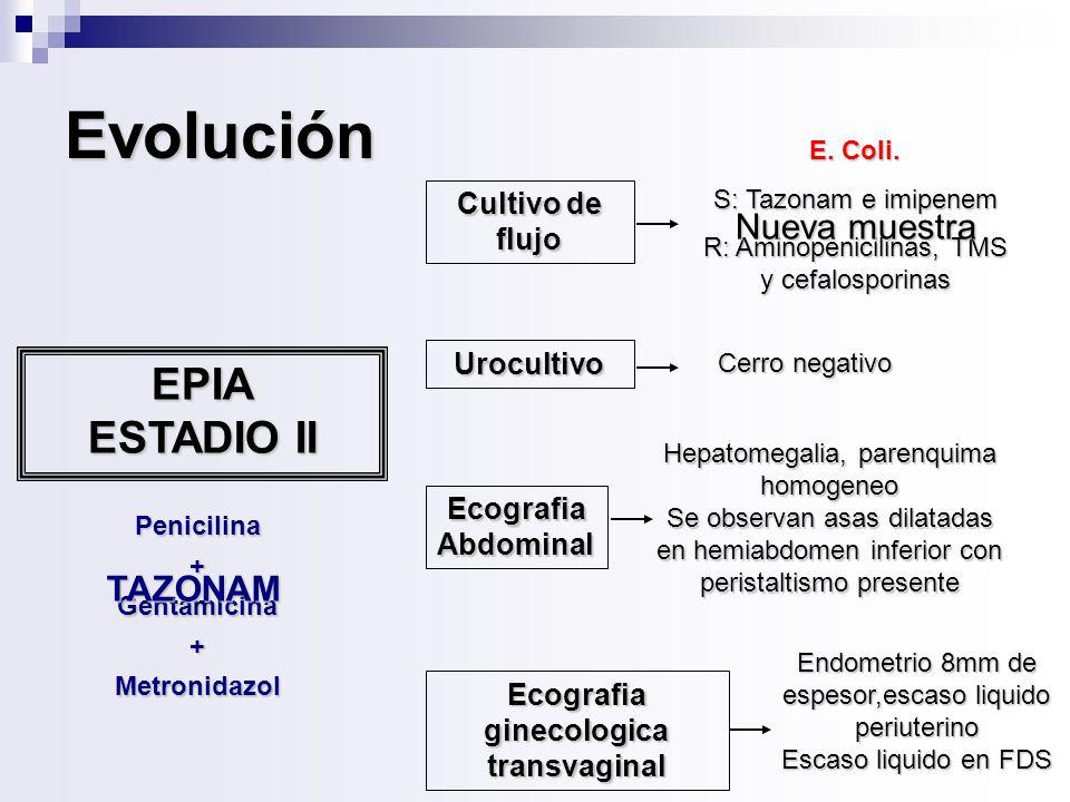 Ecografia ginecologica transvaginal