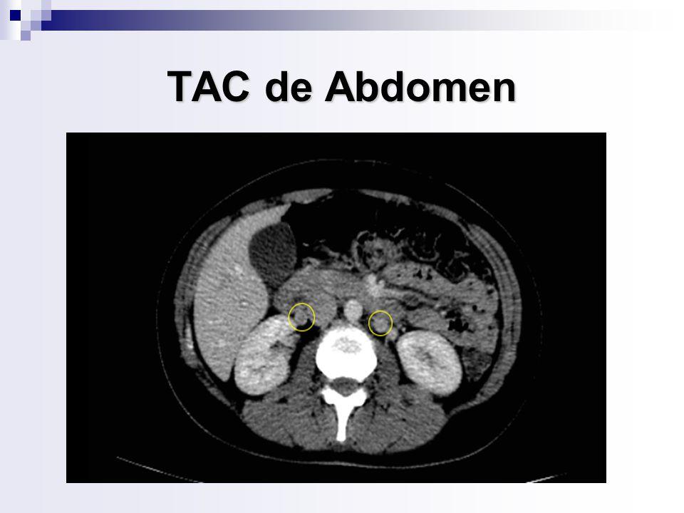 TAC de Abdomen