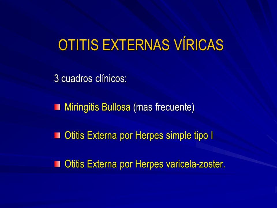 OTITIS EXTERNAS VÍRICAS