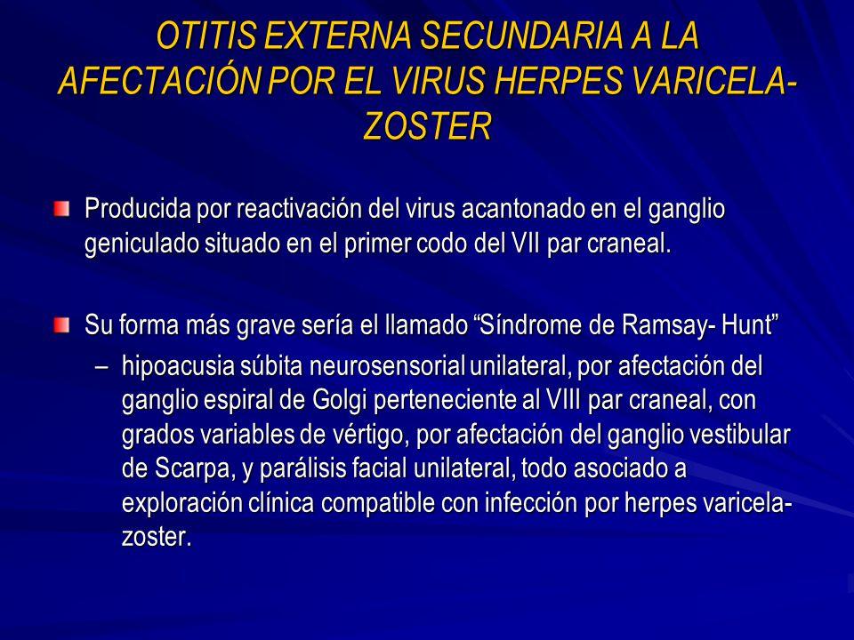 OTITIS EXTERNA SECUNDARIA A LA AFECTACIÓN POR EL VIRUS HERPES VARICELA-ZOSTER