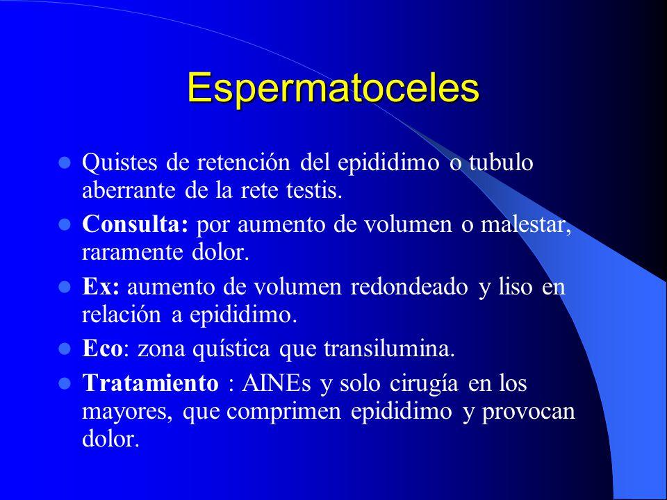 Espermatoceles Quistes de retención del epididimo o tubulo aberrante de la rete testis.