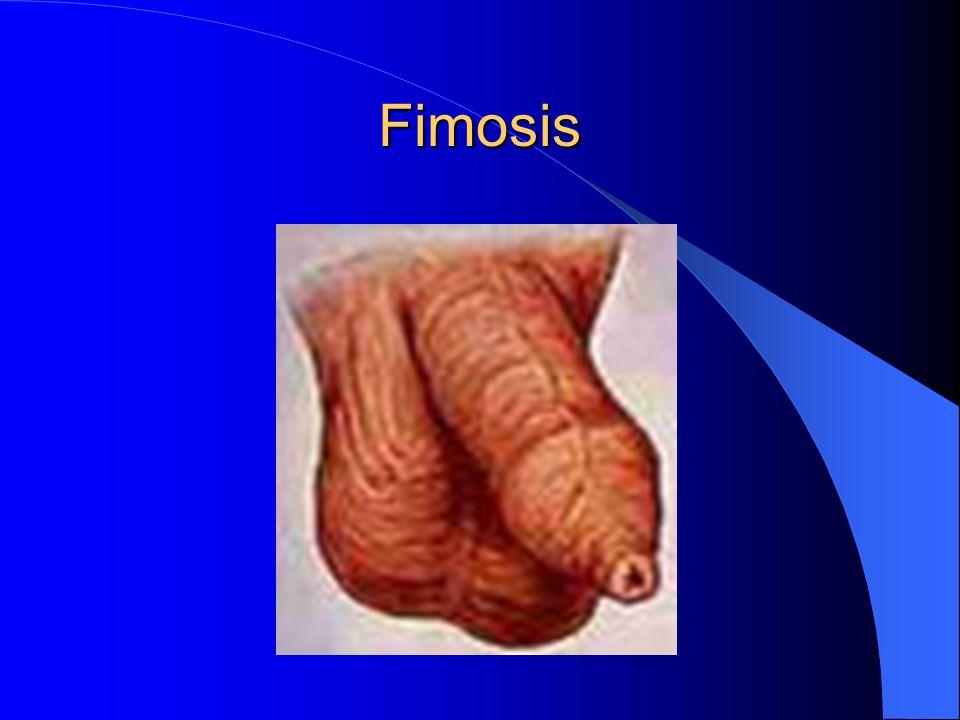 Fimosis