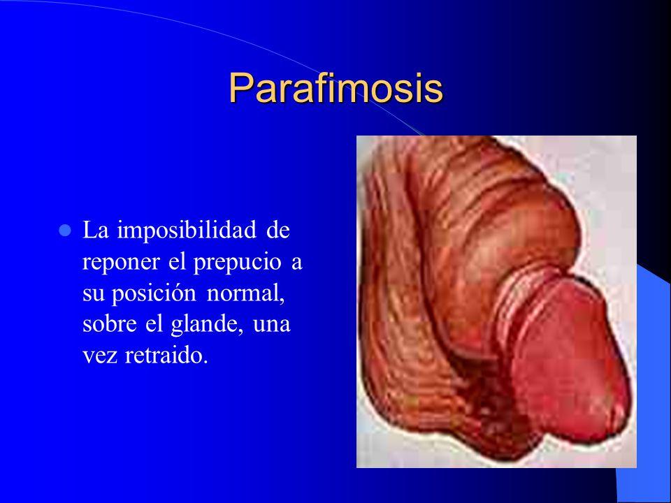 Parafimosis La imposibilidad de reponer el prepucio a su posición normal, sobre el glande, una vez retraido.