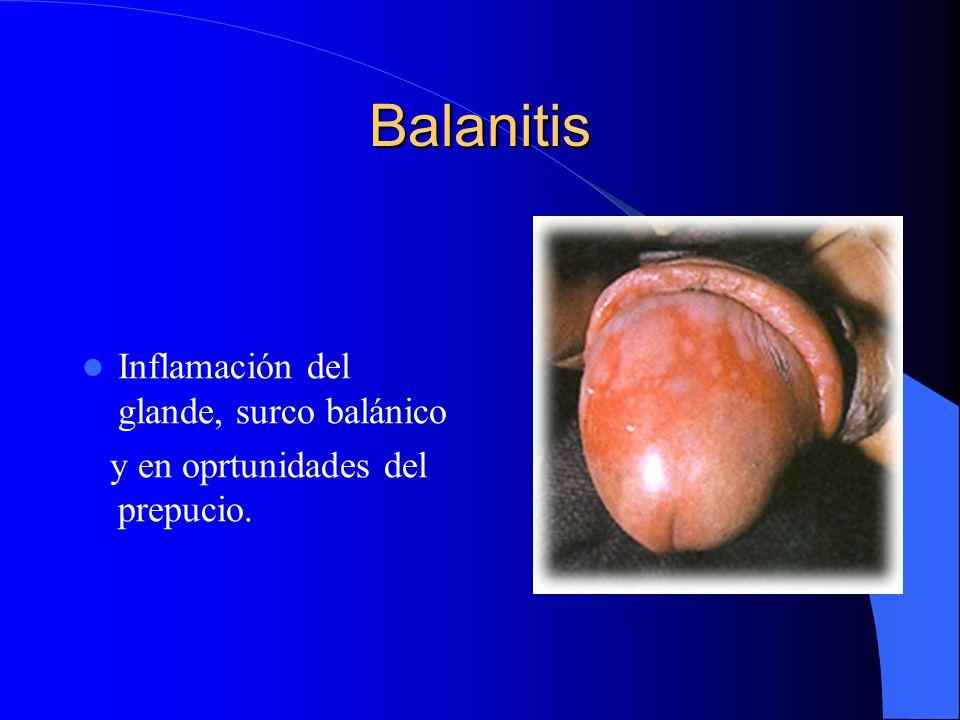 Balanitis Inflamación del glande, surco balánico