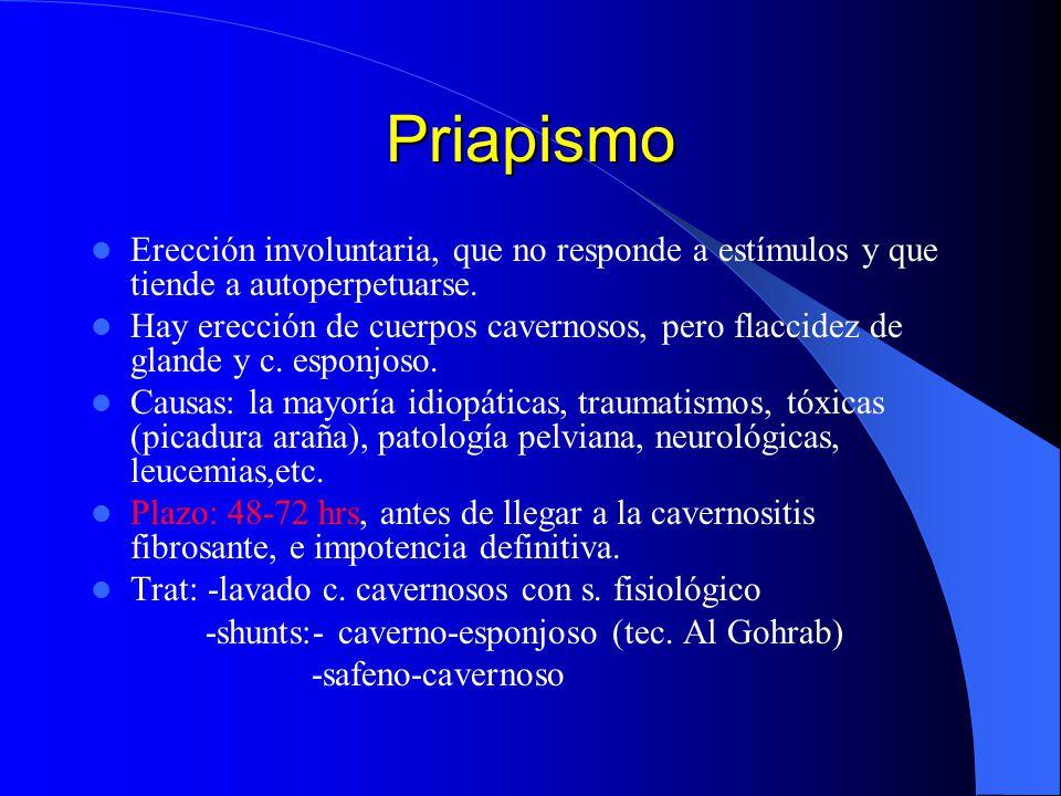 Priapismo Erección involuntaria, que no responde a estímulos y que tiende a autoperpetuarse.