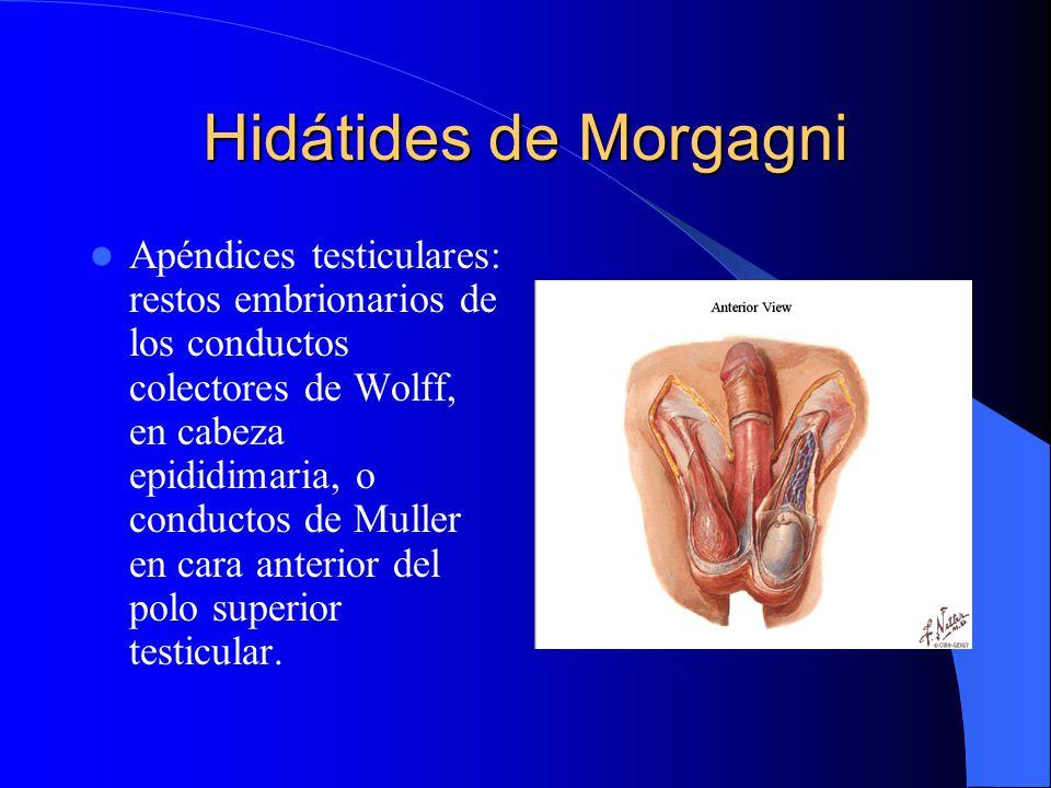Hidátides de Morgagni