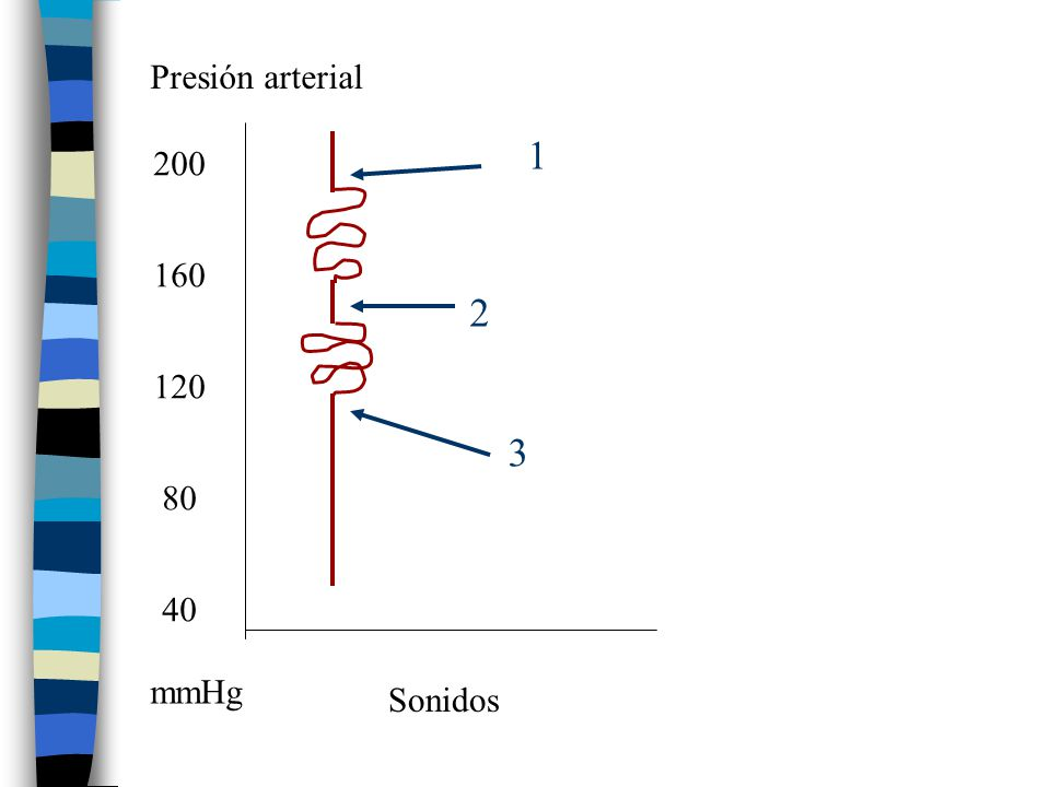 Presión arterial 1 200 160 2 120 3 80 40 mmHg Sonidos