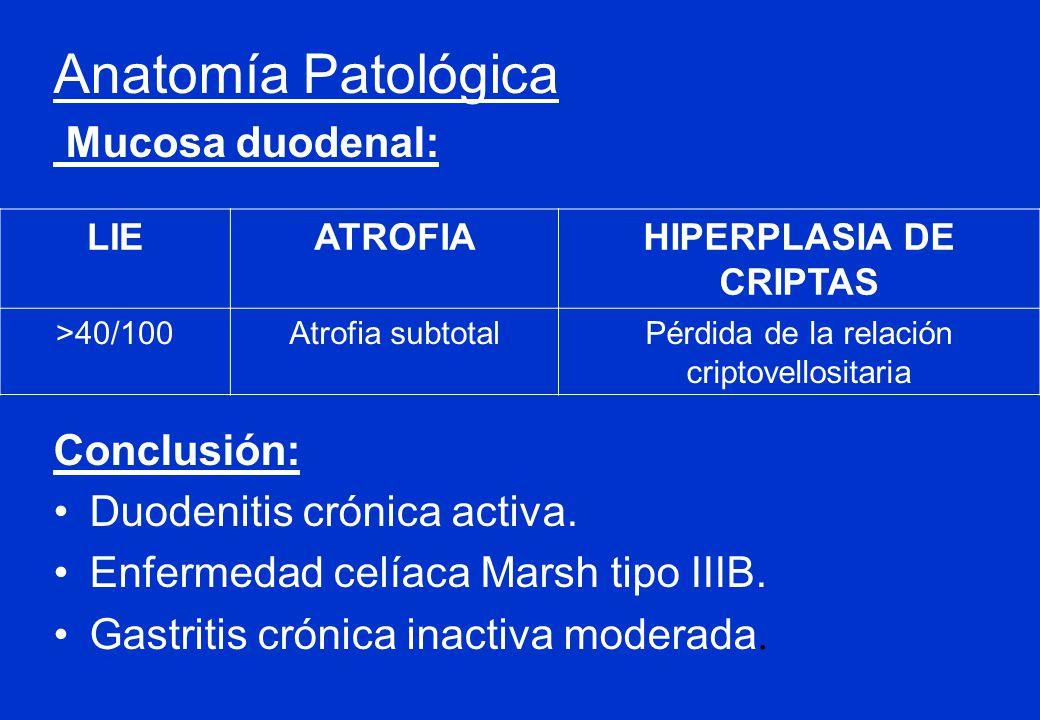 HIPERPLASIA DE CRIPTAS