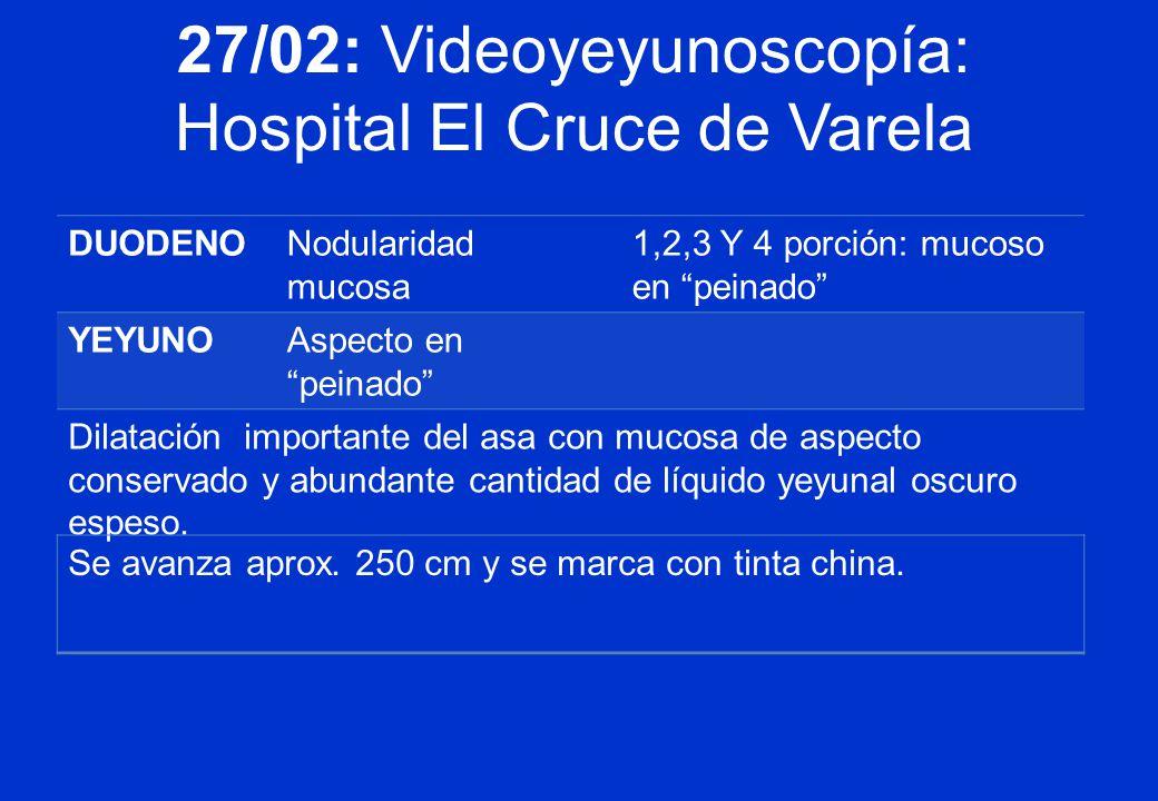 27/02: Videoyeyunoscopía: Hospital El Cruce de Varela