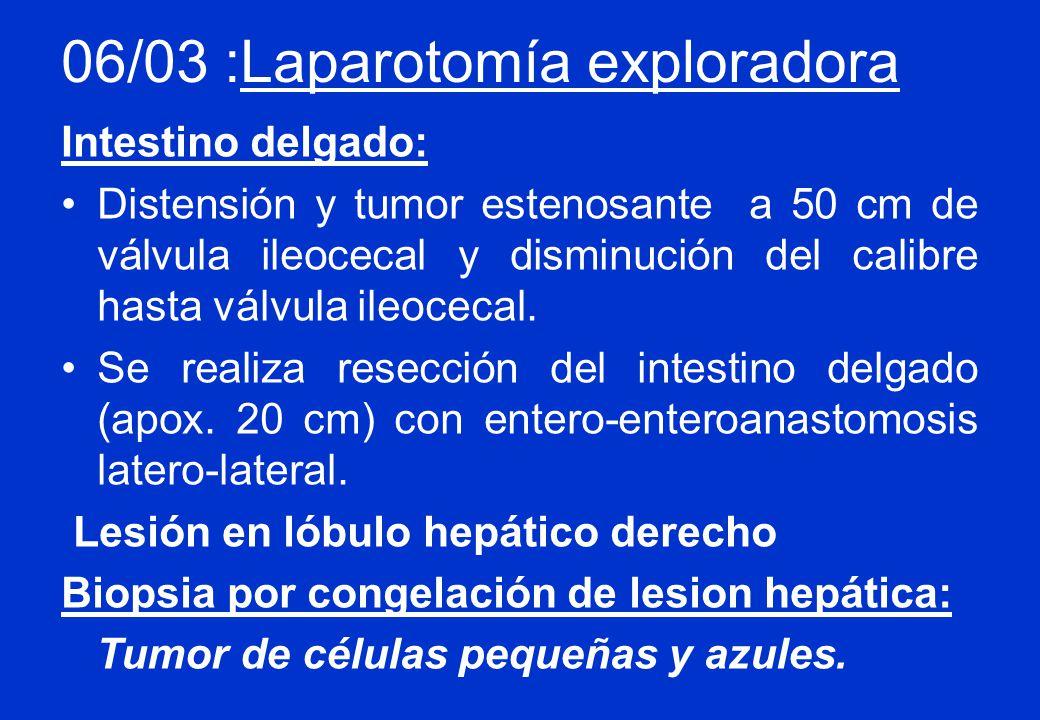 06/03 :Laparotomía exploradora