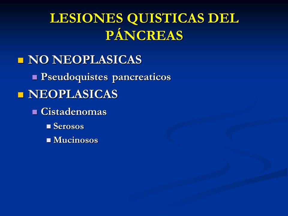 LESIONES QUISTICAS DEL PÁNCREAS