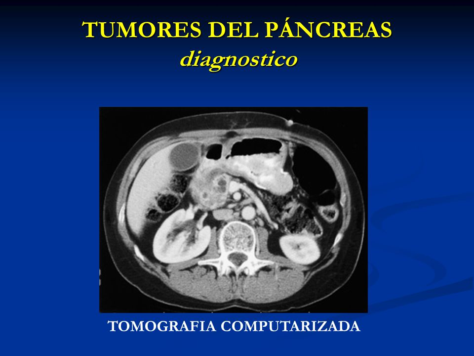 TUMORES DEL PÁNCREAS diagnostico