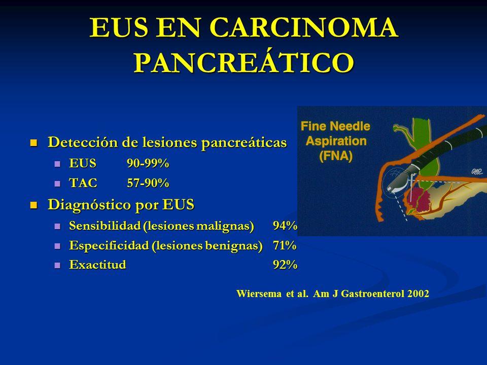 EUS EN CARCINOMA PANCREÁTICO