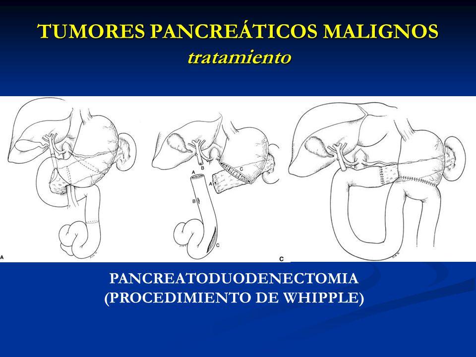 TUMORES PANCREÁTICOS MALIGNOS tratamiento