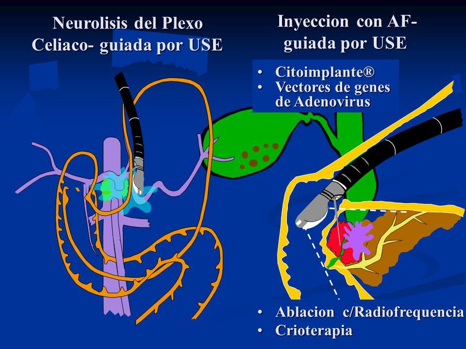 Neurolisis del Plexo Celiaco- guiada por USE