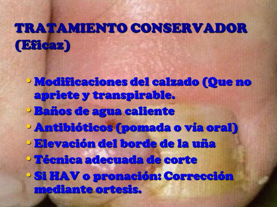 TRATAMIENTO CONSERVADOR (Eficaz)