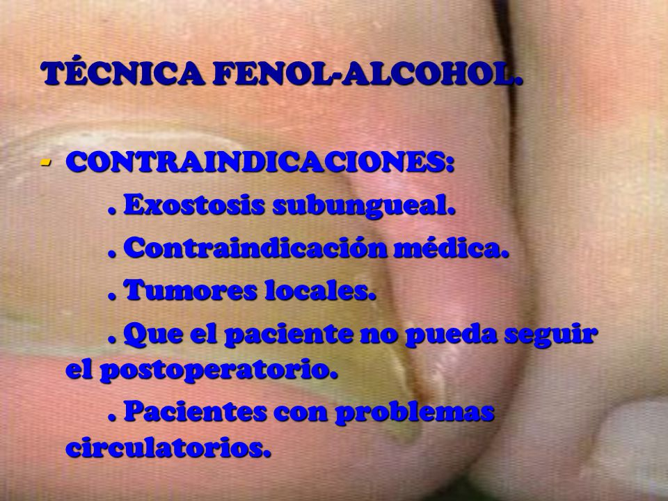 TÉCNICA FENOL-ALCOHOL.