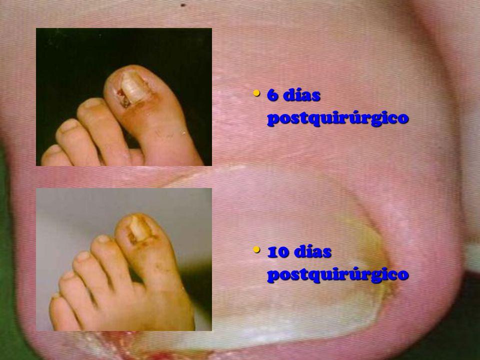 6 días postquirúrgico 10 días postquirúrgico