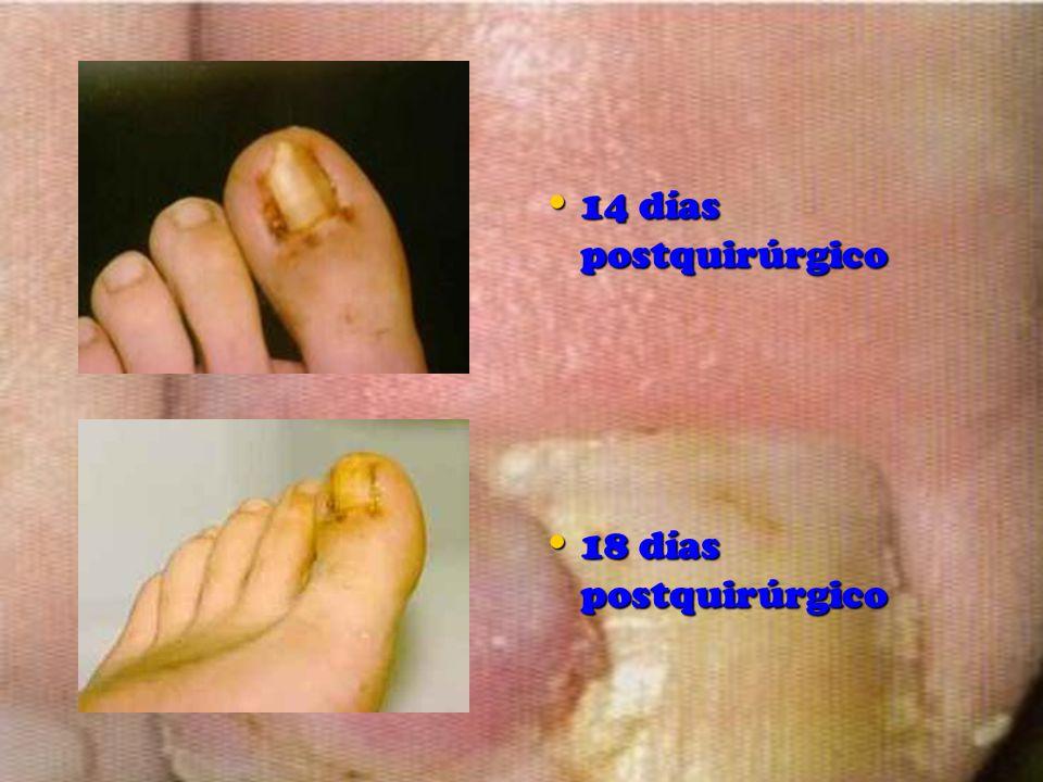 14 días postquirúrgico 18 días postquirúrgico