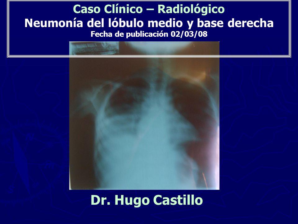 Caso Clínico – Radiológico Neumonía del lóbulo medio y base derecha