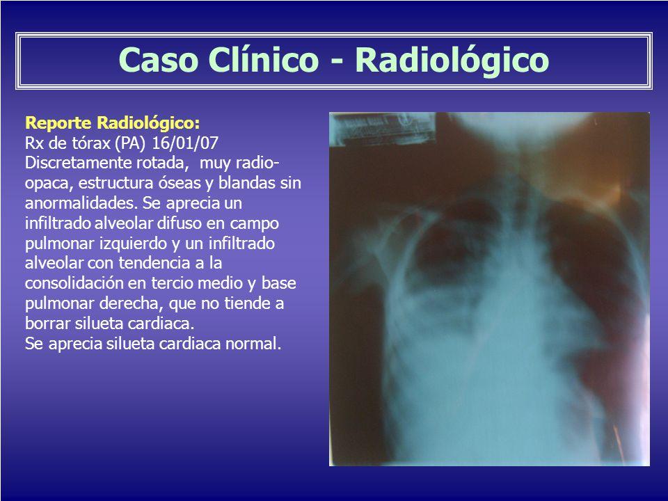 Caso Clínico - Radiológico