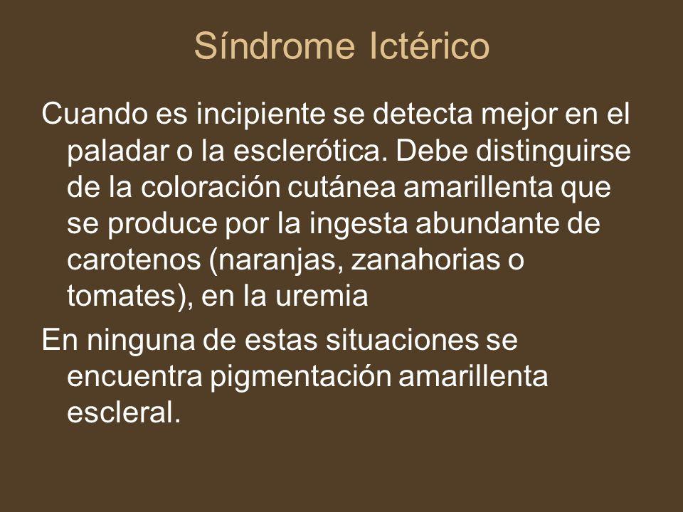Síndrome Ictérico