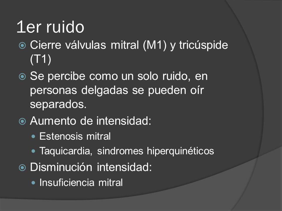 1er ruido Cierre válvulas mitral (M1) y tricúspide (T1)