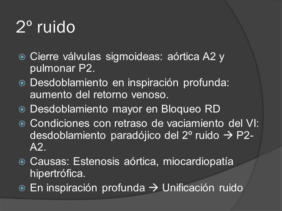 2º ruido Cierre válvulas sigmoideas: aórtica A2 y pulmonar P2.