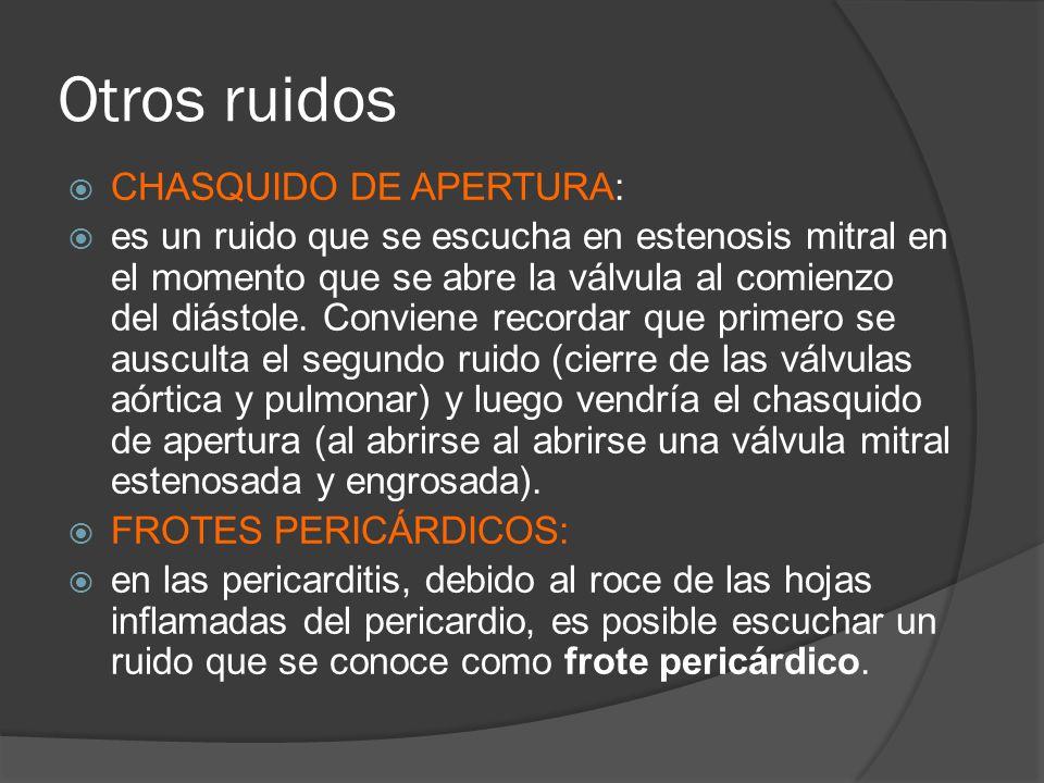Otros ruidos CHASQUIDO DE APERTURA:
