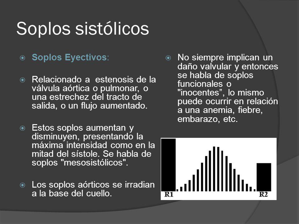Soplos sistólicos Soplos Eyectivos: